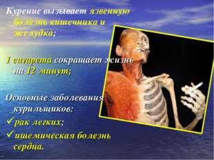 Курение вызывает язвенную болезнь кишечника и желудка; 1 сигарета сокращает ж