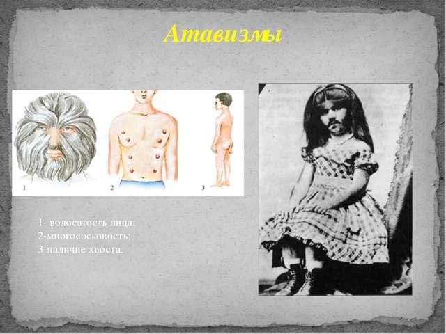 Атавизмы 1- волосатость лица; 2-многососковость; 3-наличие хвоста.