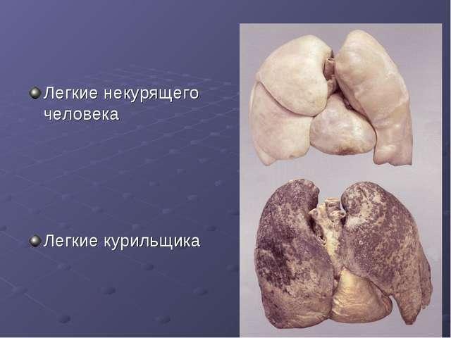 Легкие некурящего человека Легкие курильщика
