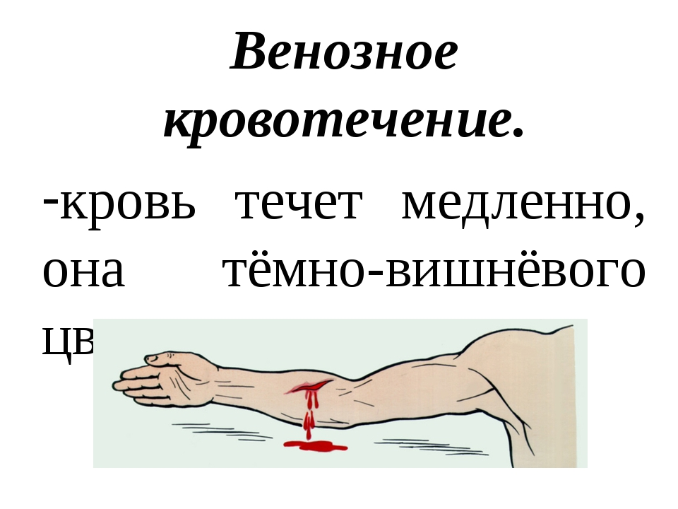 Венозное кровотечение. кровь течет медленно, она тёмно-вишнёвого цвета.