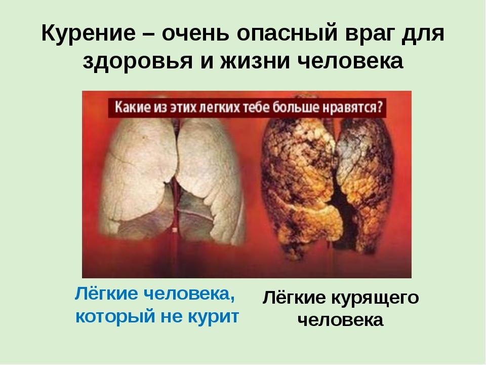 Курение – очень опасный враг для здоровья и жизни человека Лёгкие человека, к...