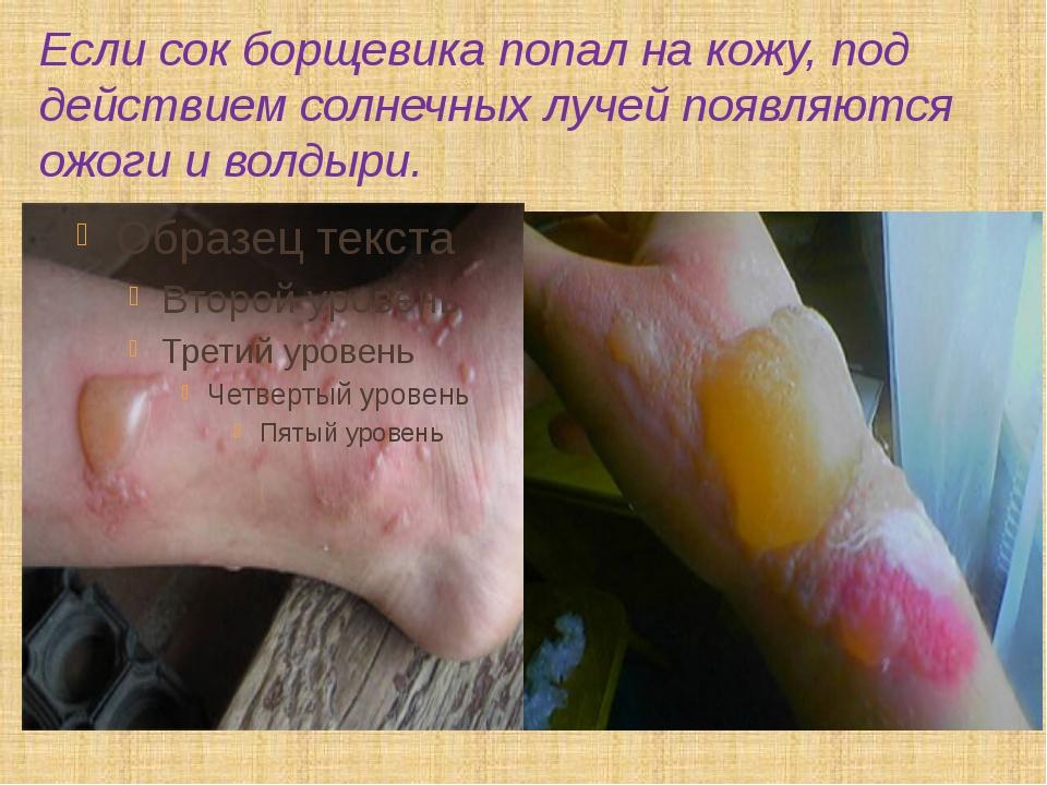 Если сок борщевика попал на кожу, под действием солнечных лучей появляются ож...