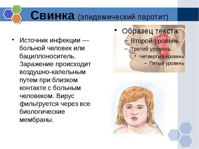 Свинка (эпидемический паротит) Источник инфекции — больной человек или бацилл...