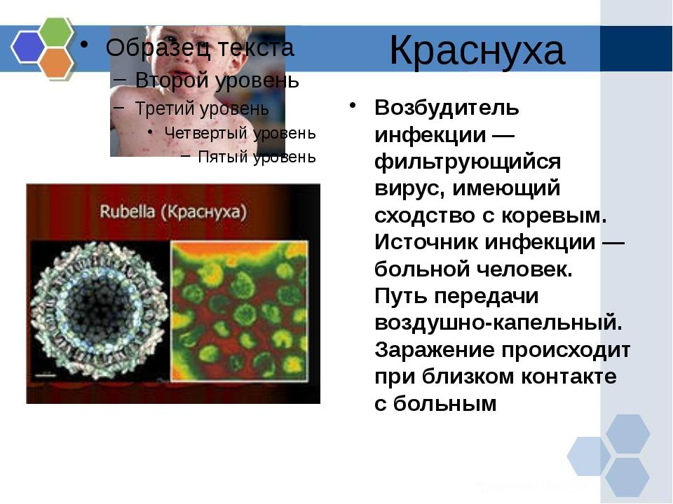 Краснуха Возбудитель инфекции — фильтрующийся вирус, имеющий сходство с корев...