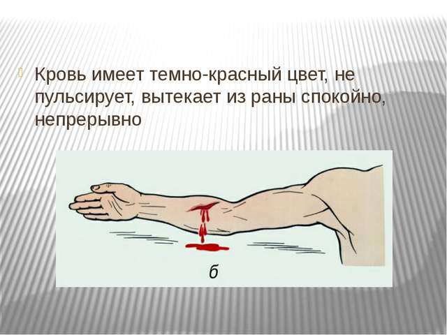 Кровь имеет темно-красный цвет, не пульсирует, вытекает из раны спокойно, неп...