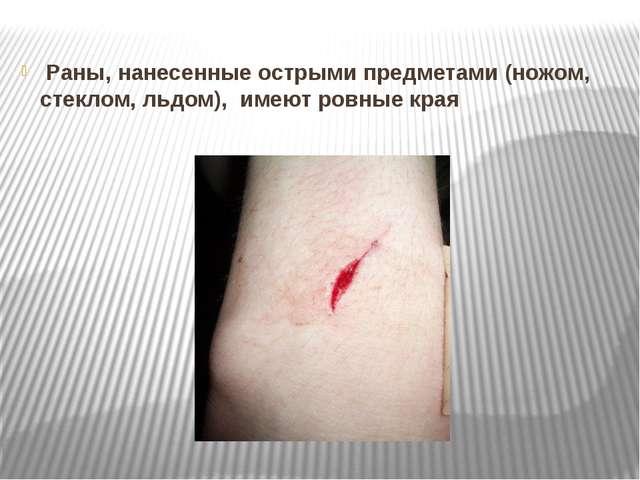 Раны, нанесенные острыми предметами (ножом, стеклом, льдом), имеют ровные к...