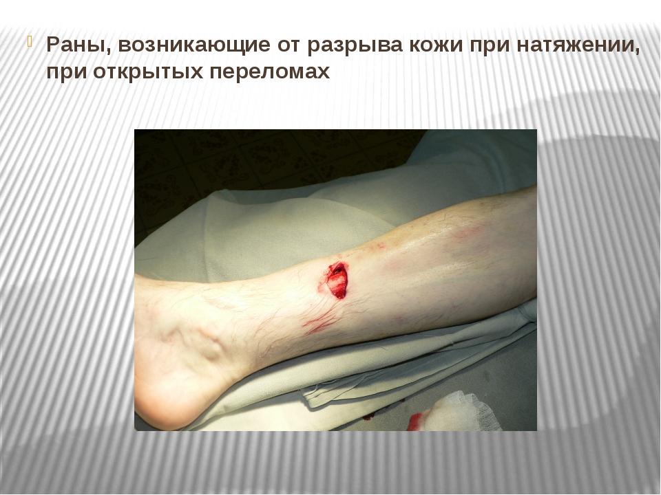 Раны, возникающие от разрыва кожи при натяжении, при открытых переломах