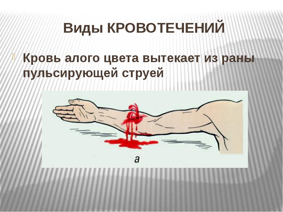 Виды КРОВОТЕЧЕНИЙ Кровь алого цвета вытекает из раны пульсирующей струей