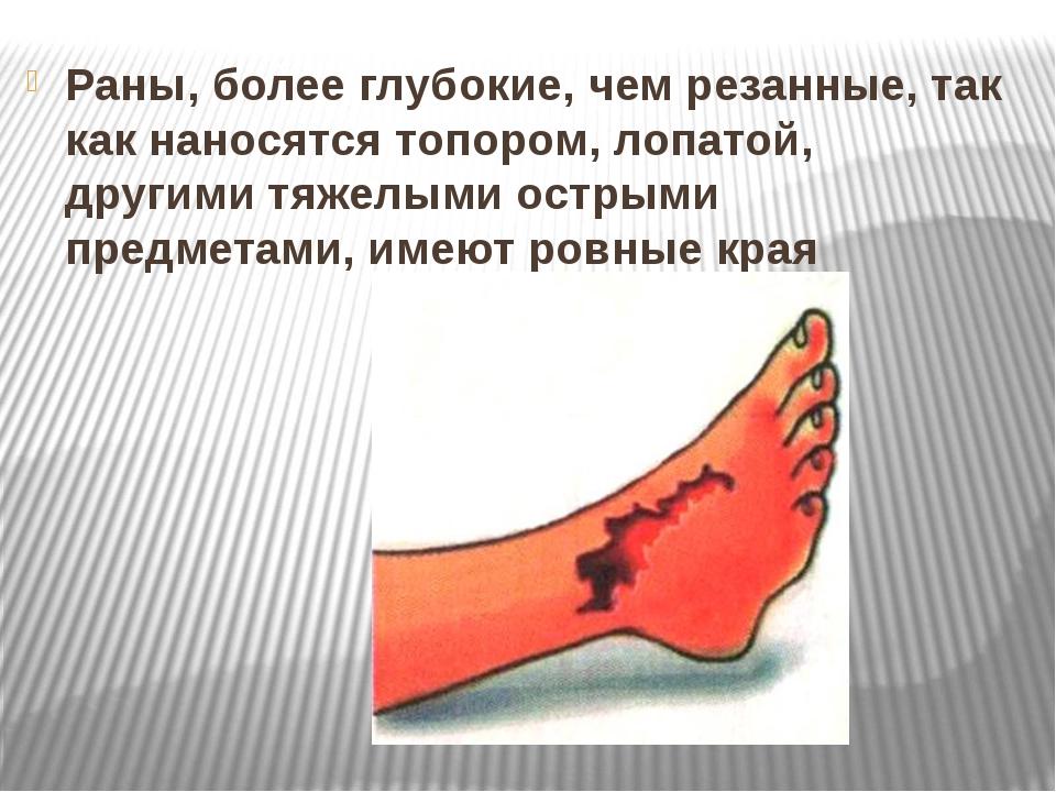 Раны, более глубокие, чем резанные, так как наносятся топором, лопатой, други...