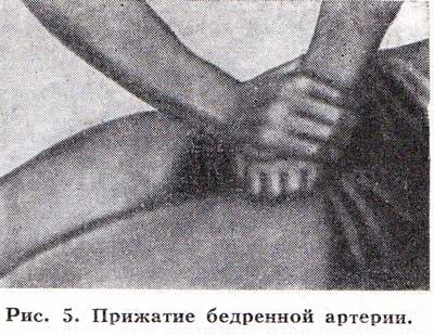 http://www.dikarka.ru/medicina/image/krovotechenie_02.jpg