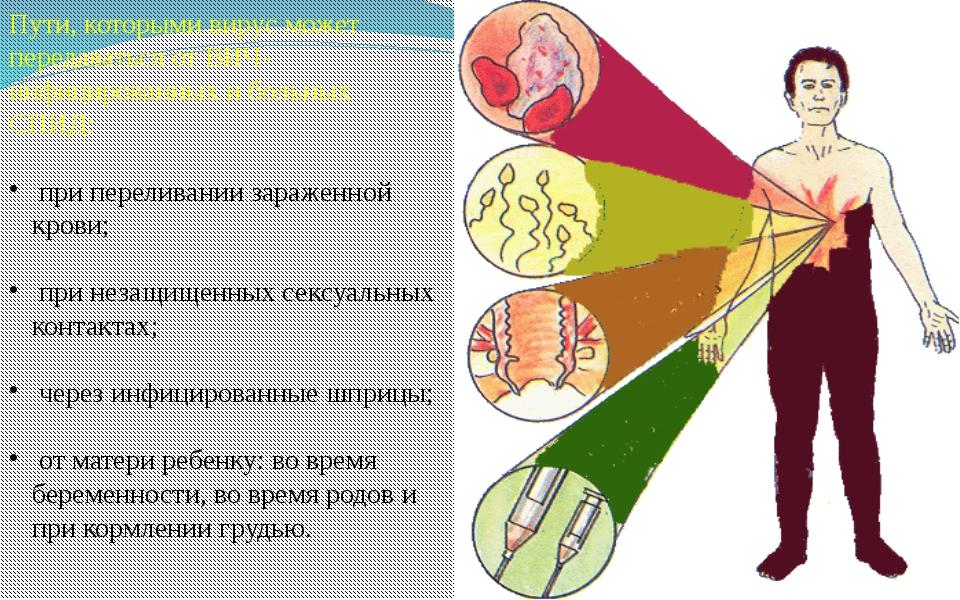 Пути, которыми вирус может передаваться от ВИЧ-инфицированных и больных СПИД:...