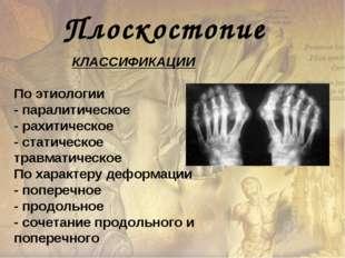 Плоскостопие КЛАССИФИКАЦИИ По этиологии - паралитическое - рахитическое - ста