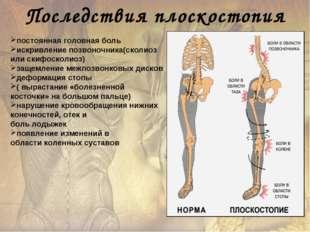 постоянная головная боль искривление позвоночника(сколиоз или скифосколиоз) з