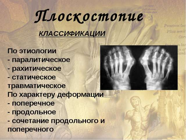 Плоскостопие КЛАССИФИКАЦИИ По этиологии - паралитическое - рахитическое - ста...