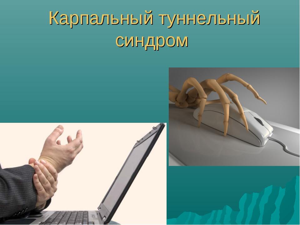 Карпальный туннельный синдром