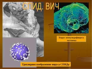 Трехмерное изображение вируса СПИДа Вирус иммунодефицита человека