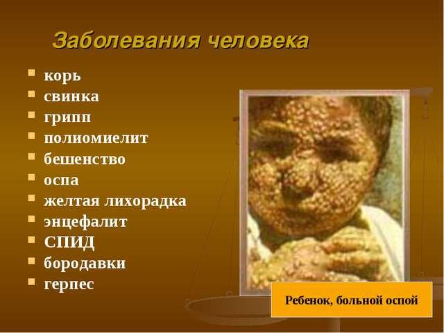 корь свинка грипп полиомиелит бешенство оспа желтая лихорадка энцефалит СПИД...