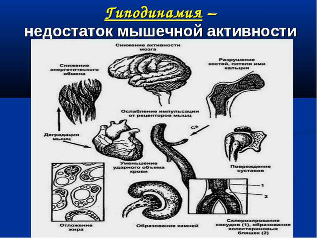 Гиподинамия – недостаток мышечной активности
