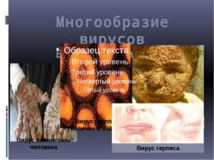 Многообразие вирусов Болезни человека Вирус герпеса Вирус папилломы человека