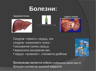 Болезни: Цирроз печени Здоровая печень Синдром «пивного» сердца, или синдром