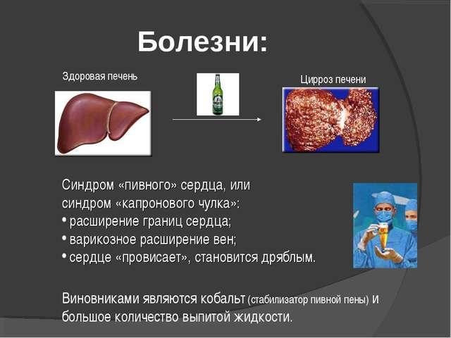 Болезни: Цирроз печени Здоровая печень Синдром «пивного» сердца, или синдром...