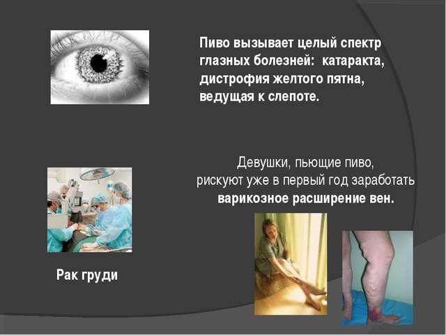 Пиво вызывает целый спектр глазных болезней: катаракта, дистрофия желтого пят...