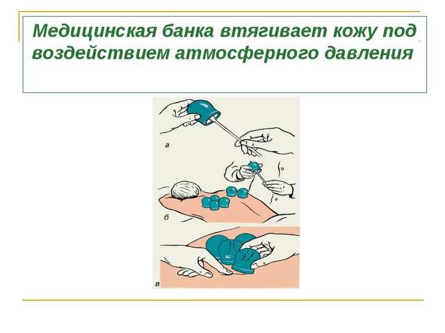 Медицинская банка втягивает кожу под воздействием атмосферного давления