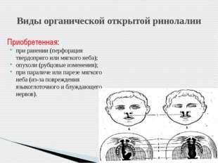 Приобретенная: при ранении (перфорация твердоприго или мягкого неба); опухоли