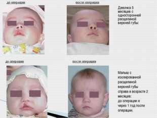 до операции после операции Девочка 5 месяцев с односторонней расщелиной верх