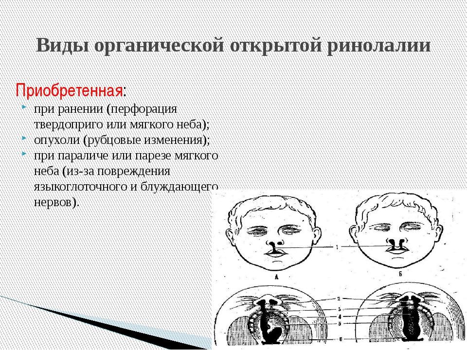 Приобретенная: при ранении (перфорация твердоприго или мягкого неба); опухоли...