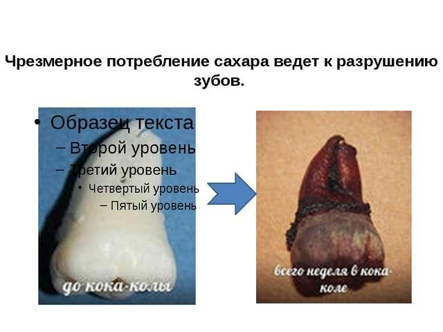 Чрезмерное потребление сахара ведет к разрушению зубов.