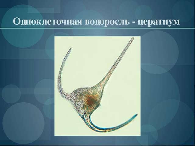 Одноклеточная водоросль - цератиум