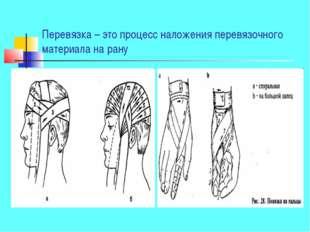 Перевязка – это процесс наложения перевязочного материала на рану
