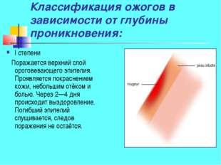 Классификация ожогов в зависимости от глубины проникновения: I степени Поража