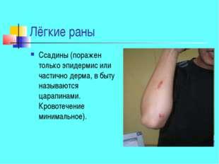 Лёгкие раны Ссадины (поражен только эпидермис или частично дерма, в быту назы