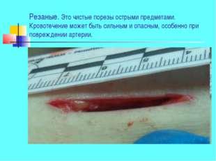 Резаные. Это чистые порезы острыми предметами. Кровотечение может быть сильны
