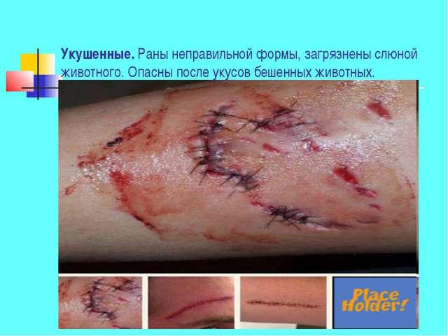 Укушенные. Раны неправильной формы, загрязнены слюной животного. Опасны после...