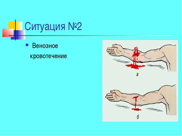 Ситуация №2 Венозное кровотечение