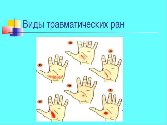 Виды травматических ран