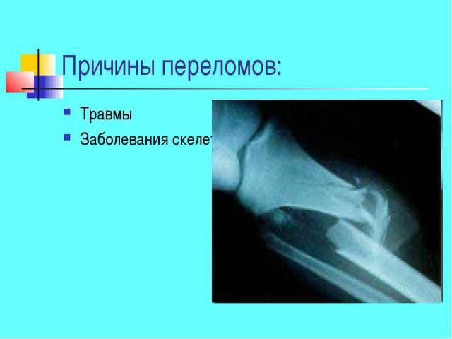 Причины переломов: Травмы Заболевания скелета
