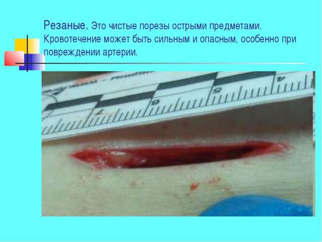 Резаные. Это чистые порезы острыми предметами. Кровотечение может быть сильны...