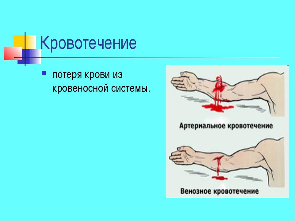 Кровотечение потеря крови из кровеносной системы.