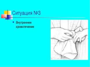 Ситуация №3 Внутреннее кровотечение