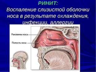 РИНИТ: Воспаление слизистой оболочки носа в результате охлаждения, инфекции,