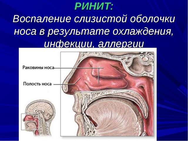 РИНИТ: Воспаление слизистой оболочки носа в результате охлаждения, инфекции,...