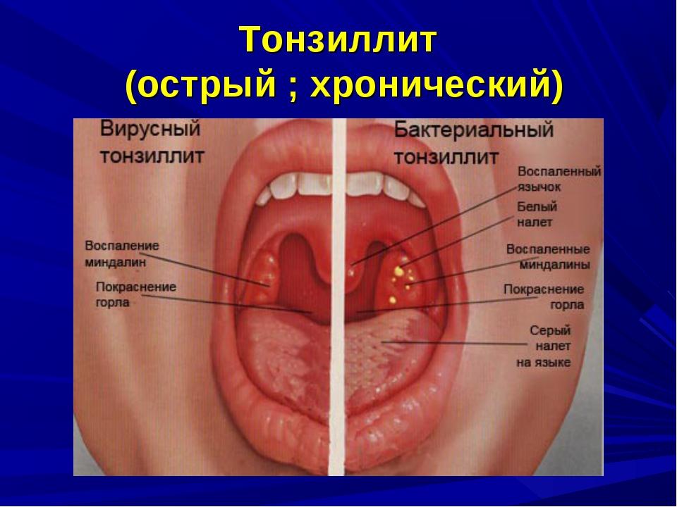 Тонзиллит (острый ; хронический)