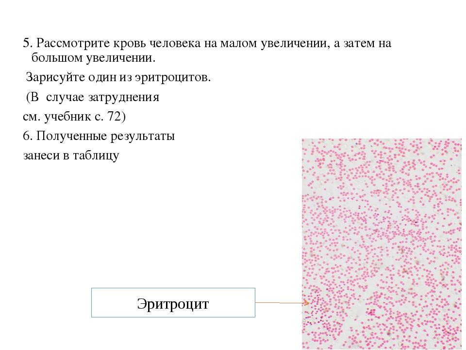 5. Рассмотрите кровь человека на малом увеличении, а затем на большом увеличе...