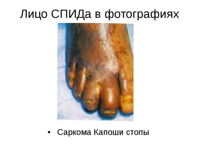 Лицо СПИДа в фотографиях Саркома Капоши стопы