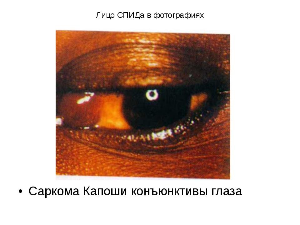 Лицо СПИДа в фотографиях Саркома Капоши конъюнктивы глаза