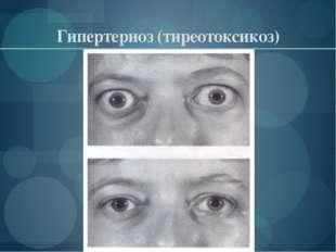 Гипертериоз (тиреотоксикоз)